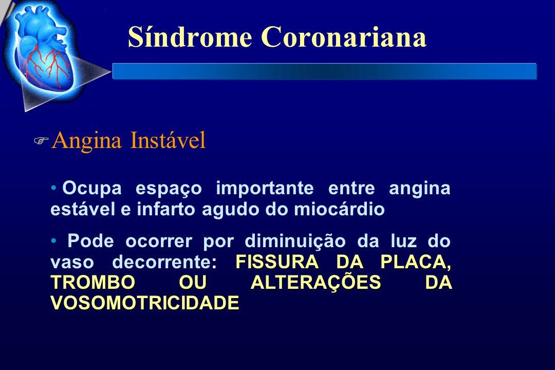Síndrome Coronariana Angina Instável