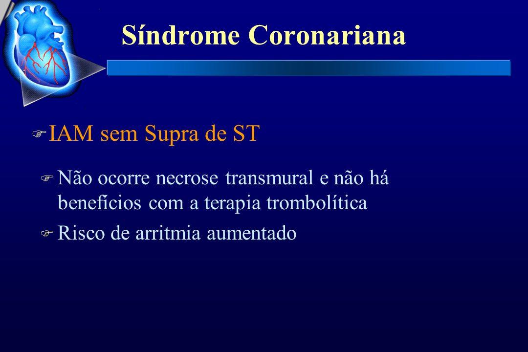 Síndrome Coronariana IAM sem Supra de ST