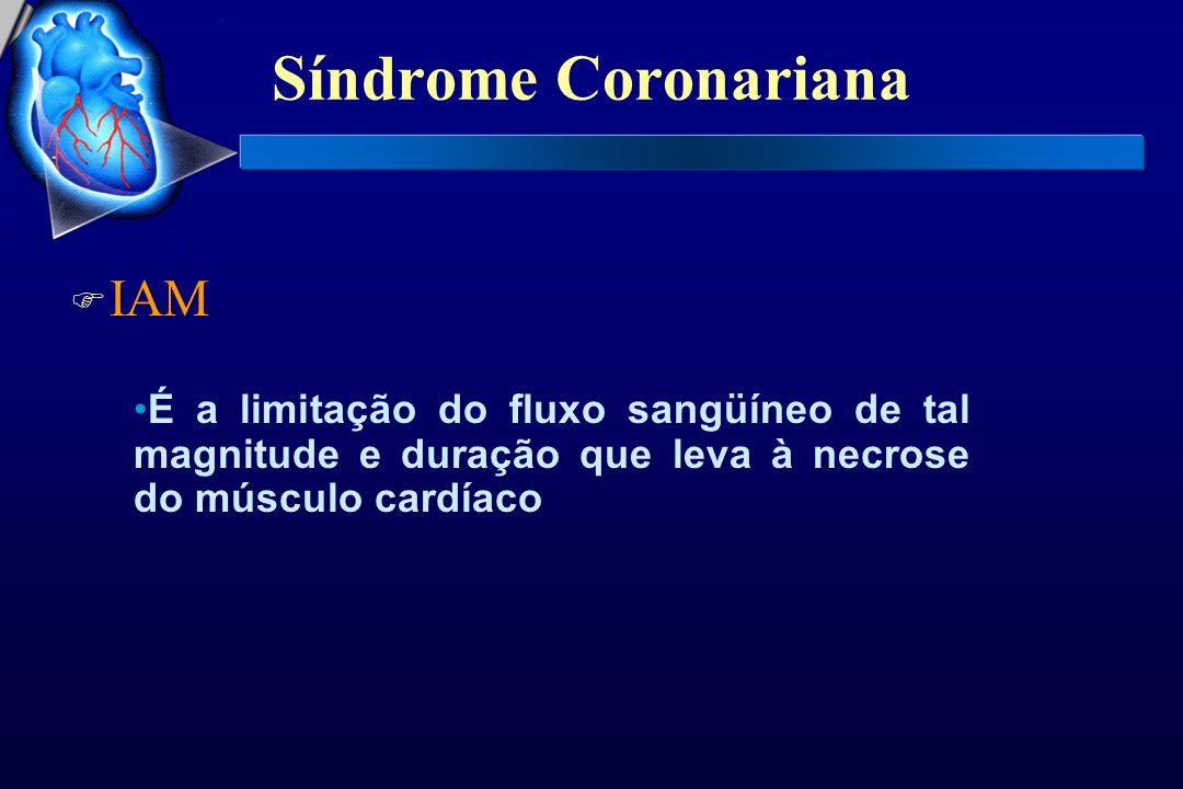 Síndrome Coronariana IAM