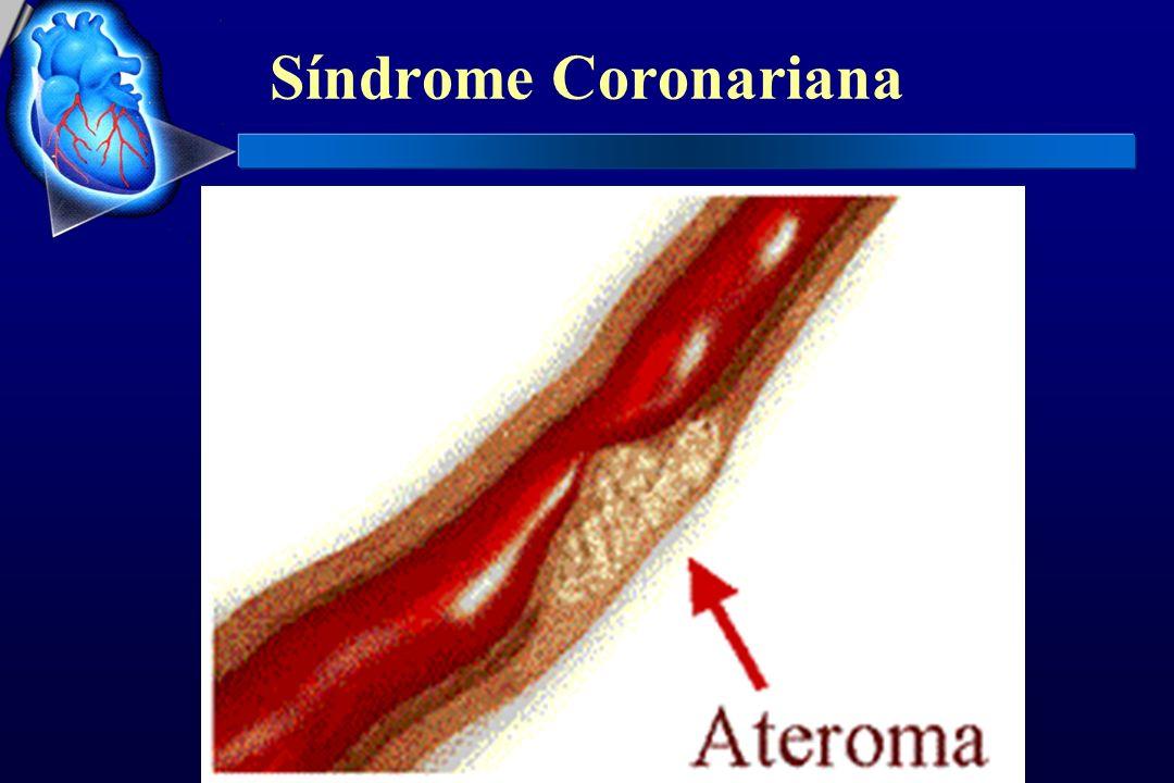 Síndrome Coronariana