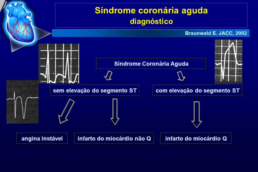 Síndrome coronária aguda