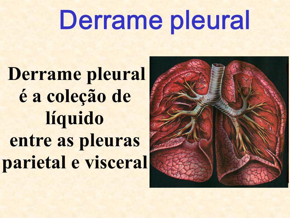 Derrame pleural é a coleção de líquido