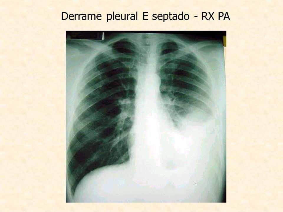 Derrame pleural E septado - RX PA
