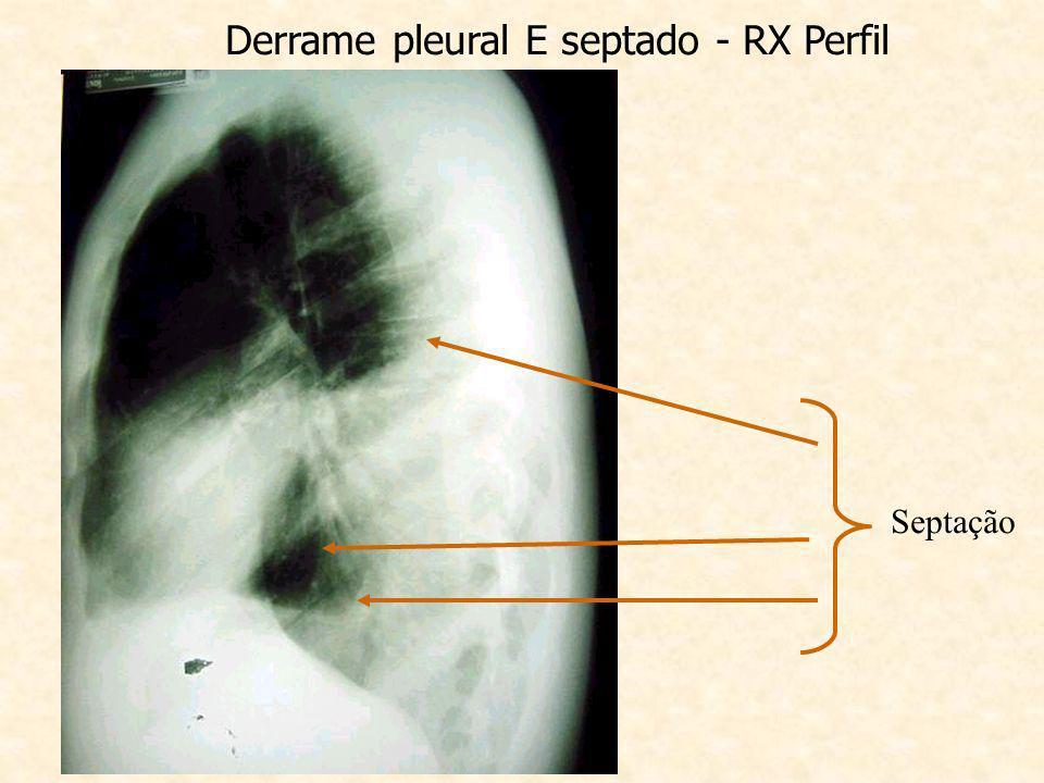 Derrame pleural E septado - RX Perfil