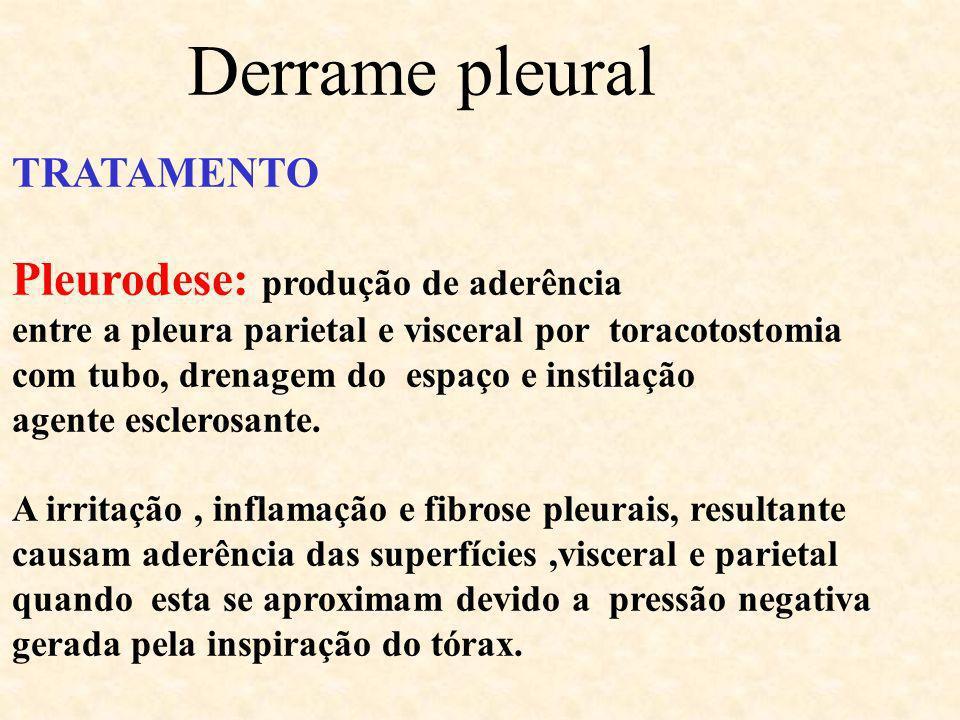 Derrame pleural Pleurodese: produção de aderência TRATAMENTO