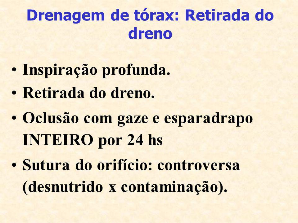 Drenagem de tórax: Retirada do dreno