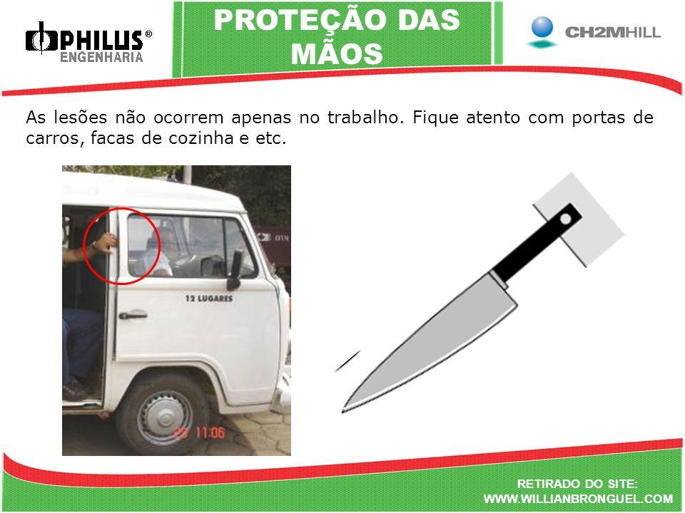 PROTEÇÃO DAS MÃOS As lesões não ocorrem apenas no trabalho. Fique atento com portas de carros, facas de cozinha e etc.