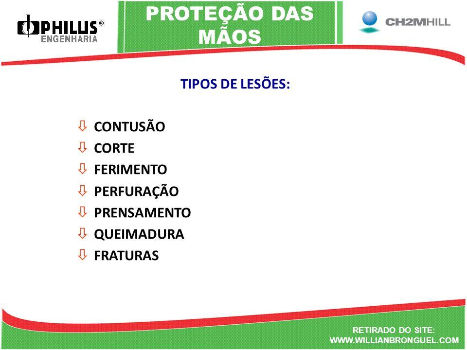 PROTEÇÃO DAS MÃOS TIPOS DE LESÕES: CONTUSÃO CORTE FERIMENTO PERFURAÇÃO