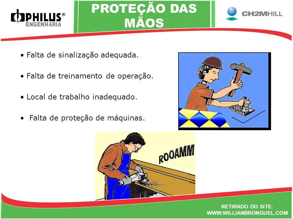 PROTEÇÃO DAS MÃOS Falta de sinalização adequada.