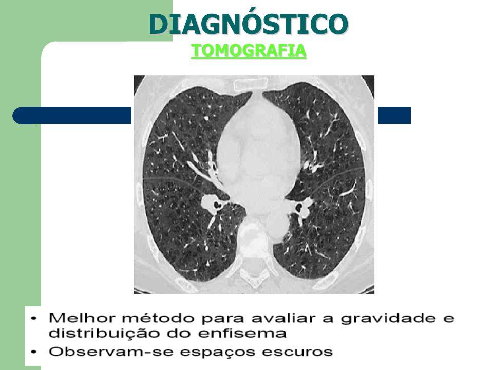 DIAGNÓSTICO TOMOGRAFIA