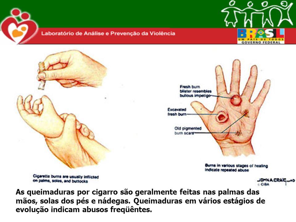 As queimaduras por cigarro são geralmente feitas nas palmas das mãos, solas dos pés e nádegas.