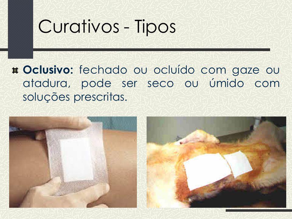 Curativos - Tipos Oclusivo: fechado ou ocluído com gaze ou atadura, pode ser seco ou úmido com soluções prescritas.