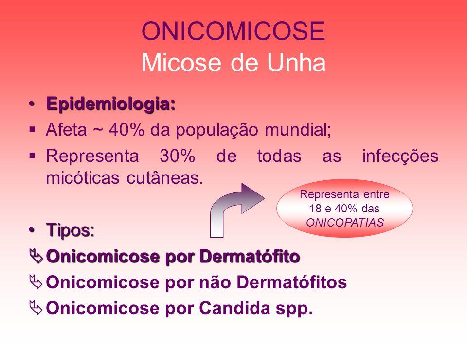 ONICOMICOSE Micose de Unha