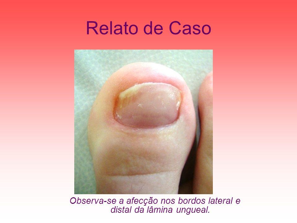Observa-se a afecção nos bordos lateral e distal da lâmina ungueal.
