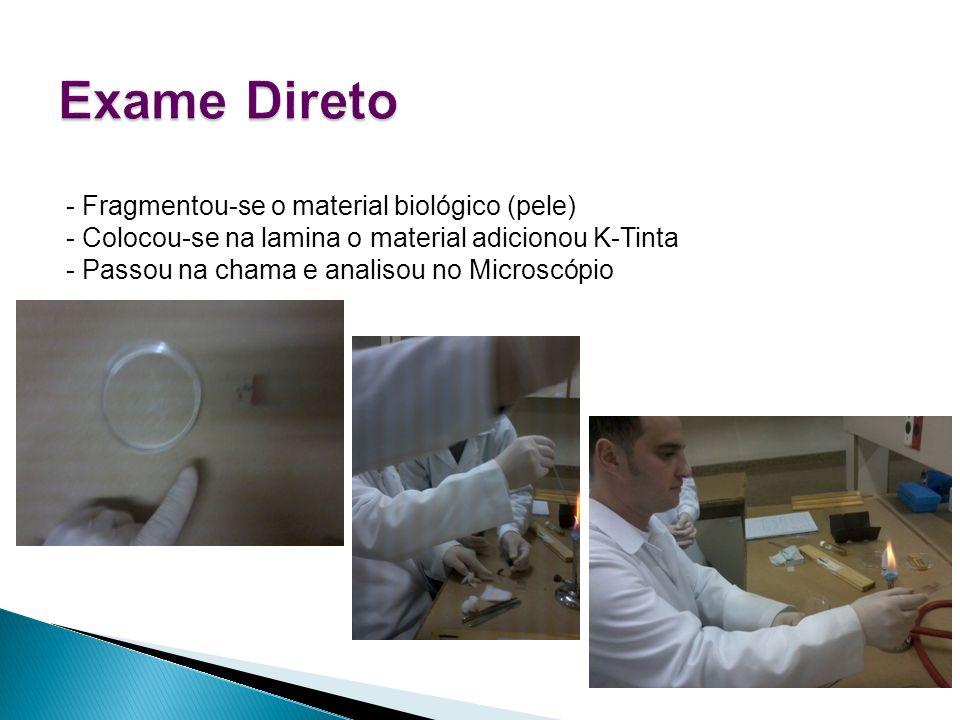 Exame Direto - Fragmentou-se o material biológico (pele)