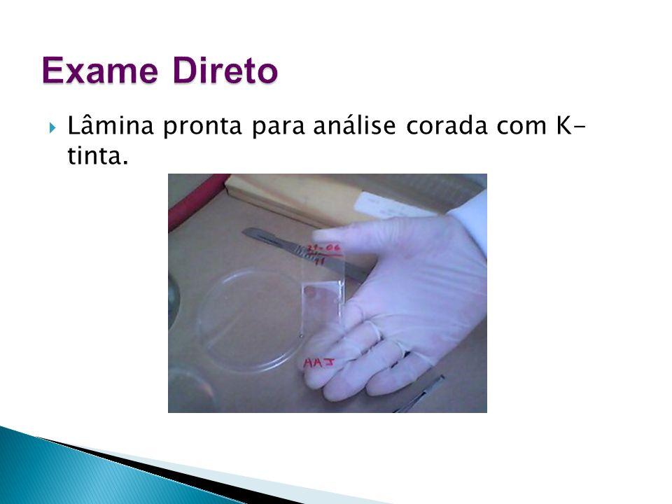 Exame Direto Lâmina pronta para análise corada com K- tinta.