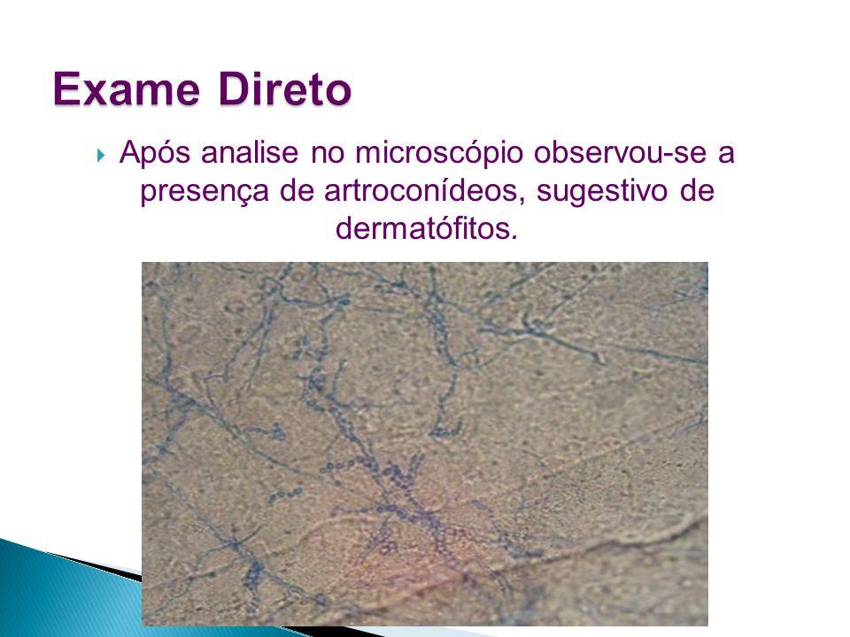 Exame DiretoApós analise no microscópio observou-se a presença de artroconídeos, sugestivo de dermatófitos.