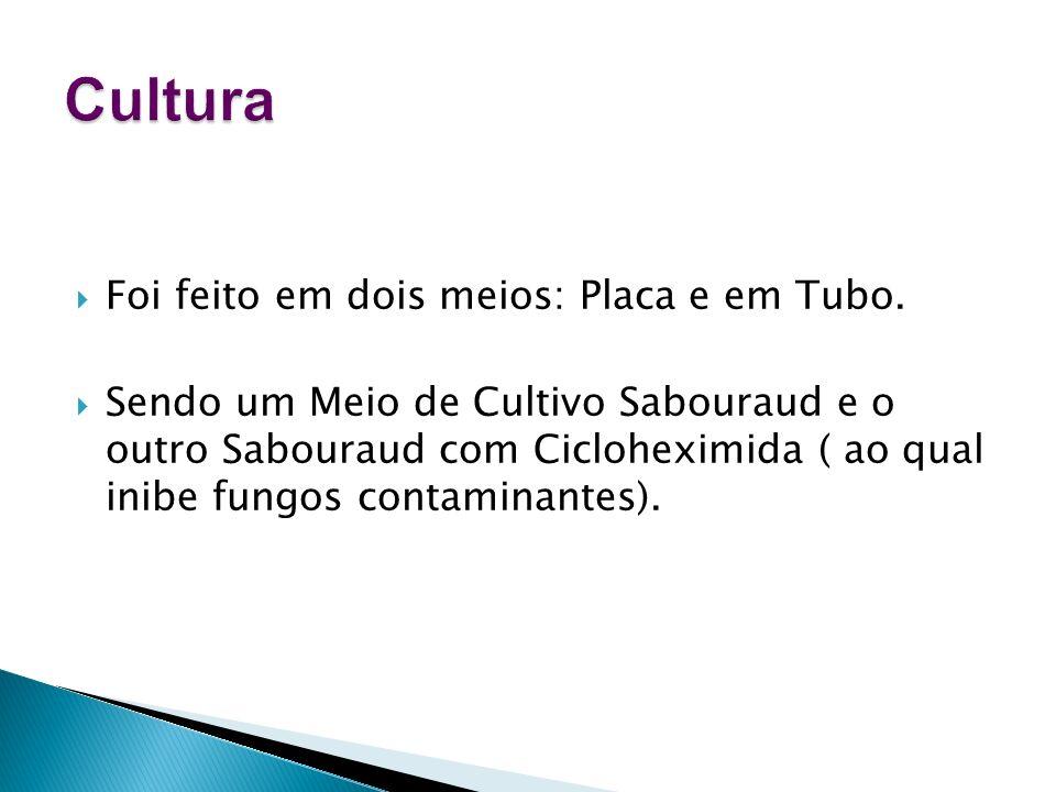 Cultura Foi feito em dois meios: Placa e em Tubo.