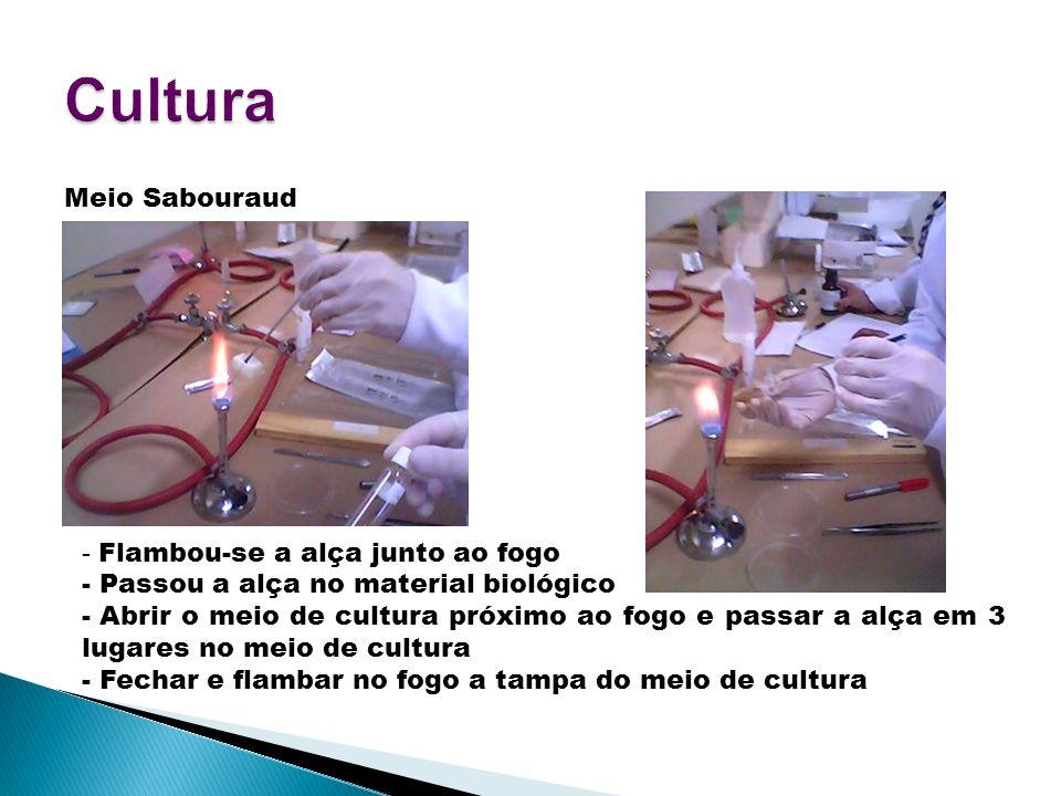 Cultura Meio Sabouraud - Flambou-se a alça junto ao fogo