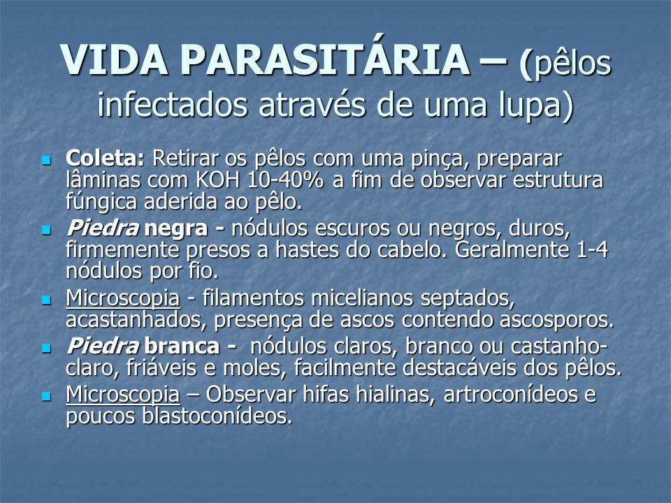VIDA PARASITÁRIA – (pêlos infectados através de uma lupa)
