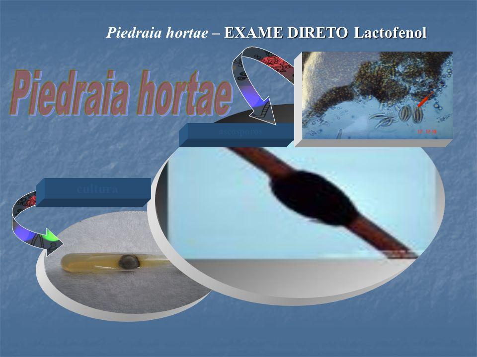 Piedraia hortae – EXAME DIRETO Lactofenol