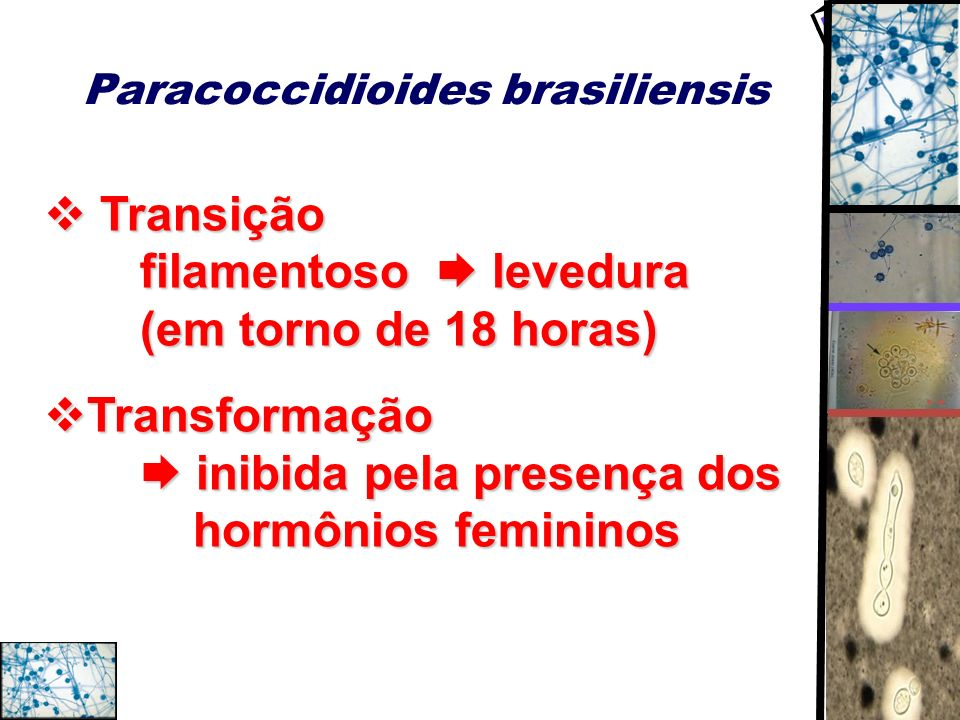 Paracoccidioides brasiliensis