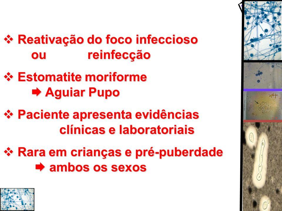 Reativação do foco infeccioso ou reinfecção