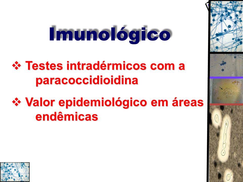 Imunológico Testes intradérmicos com a paracoccidioidina