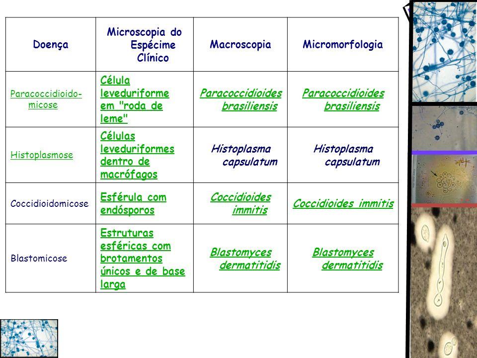 Microscopia do Espécime Clínico Macroscopia Micromorfologia