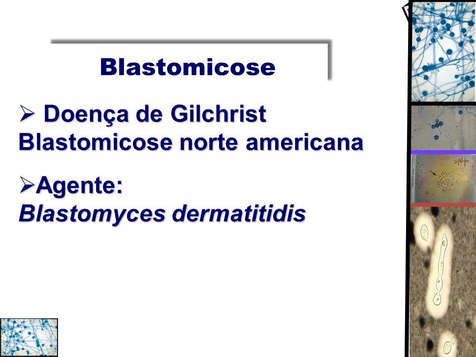 Blastomicose Doença de Gilchrist Blastomicose norte americana.