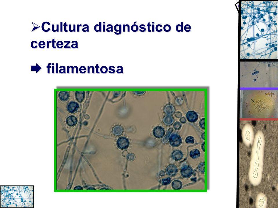 Cultura diagnóstico de certeza