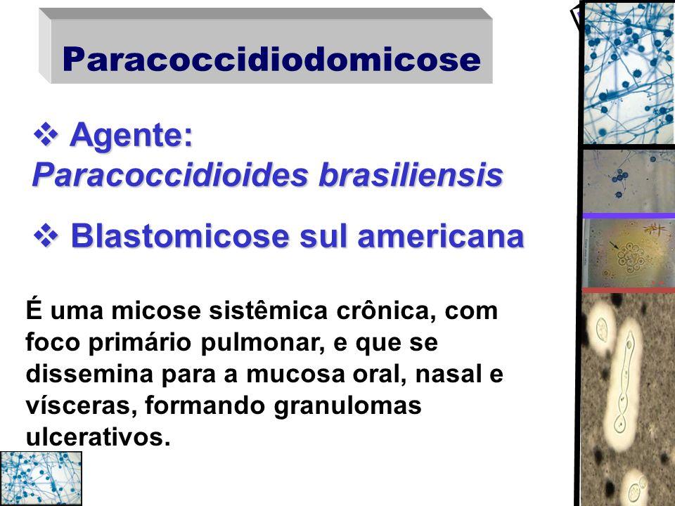 Paracoccidiodomicose