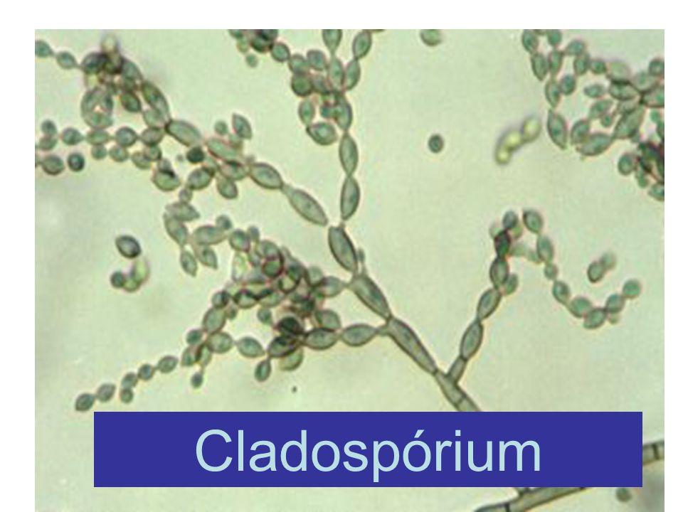 Cladospórium