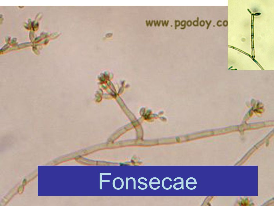 Fonsecae