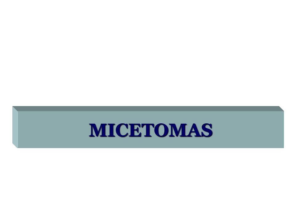 MICETOMAS