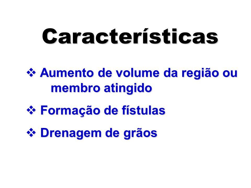 Características Aumento de volume da região ou membro atingido