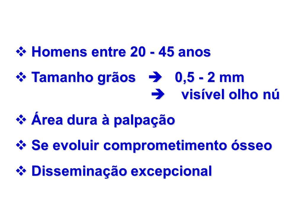 Homens entre 20 - 45 anosTamanho grãos  0,5 - 2 mm  visível olho nú.