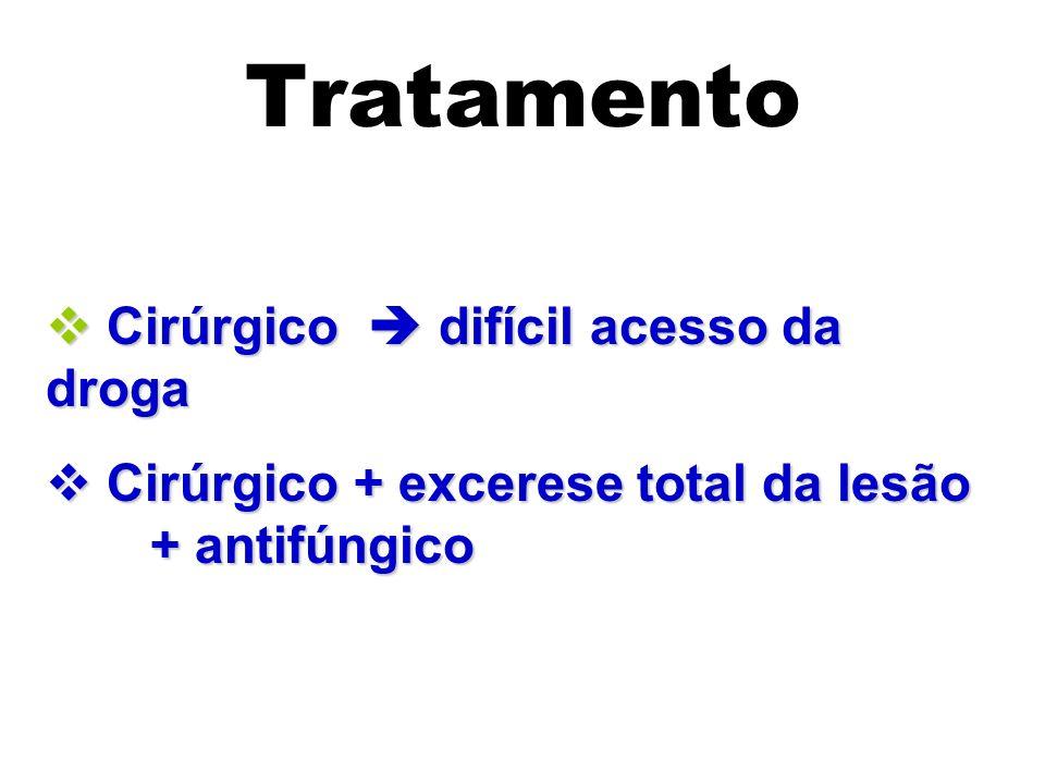 Tratamento Cirúrgico  difícil acesso da droga