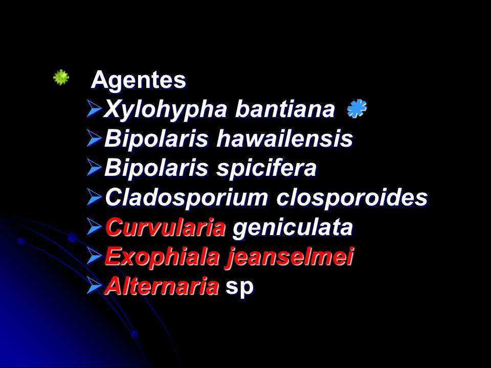 Agentes Xylohypha bantiana  Bipolaris hawailensis. Bipolaris spicifera. Cladosporium closporoides.