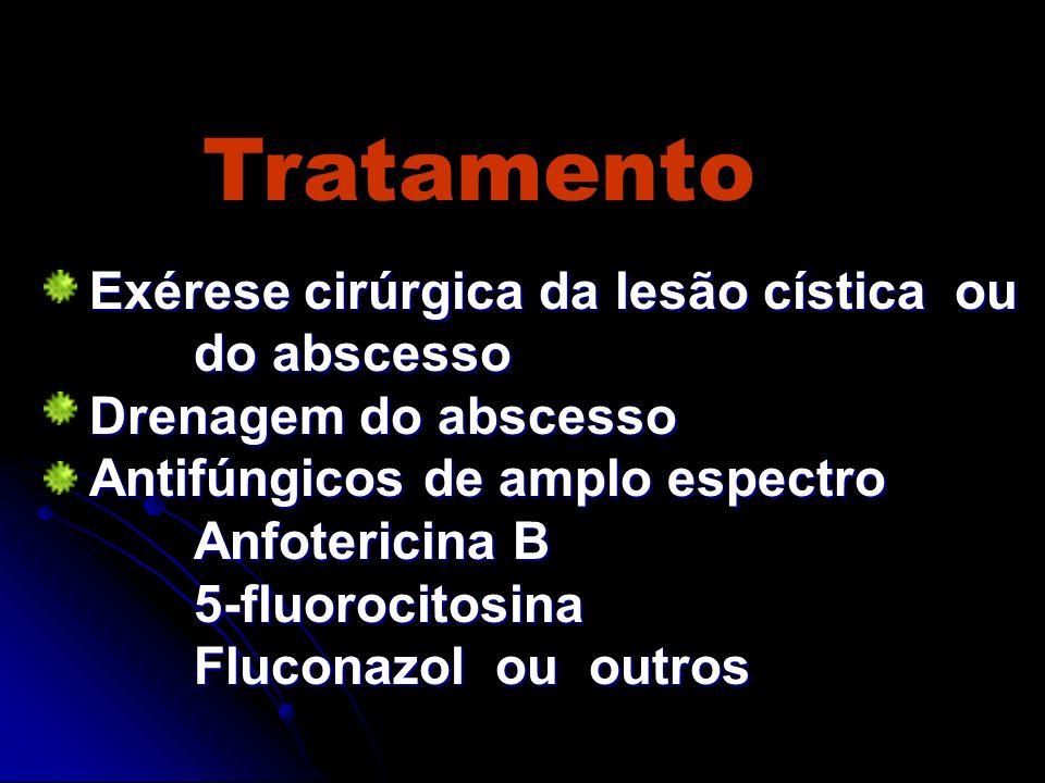 Tratamento Exérese cirúrgica da lesão cística ou do abscesso