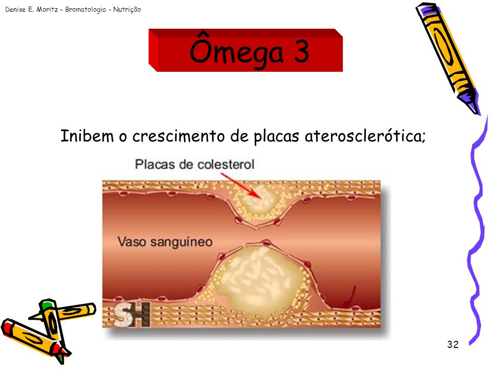 Ômega 3 Inibem o crescimento de placas aterosclerótica;
