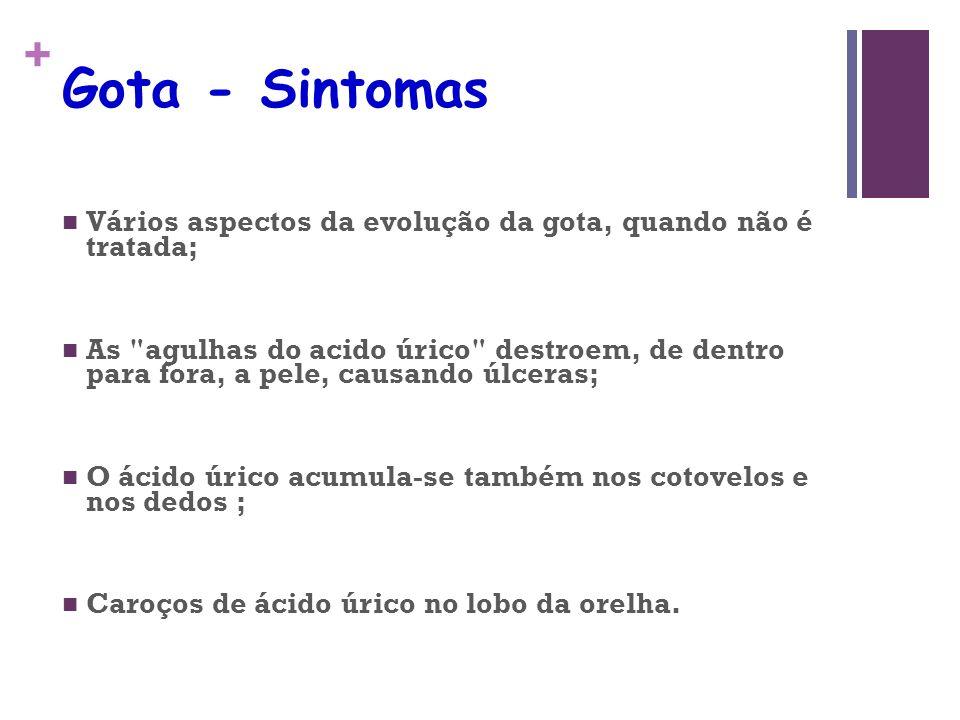 Gota - Sintomas Vários aspectos da evolução da gota, quando não é tratada;
