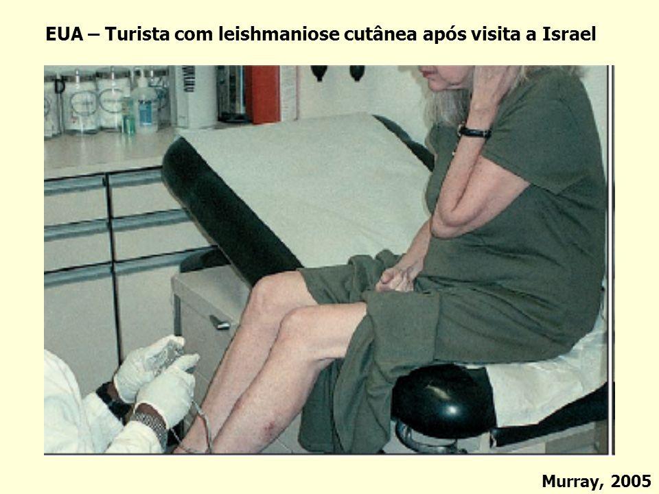 EUA – Turista com leishmaniose cutânea após visita a Israel
