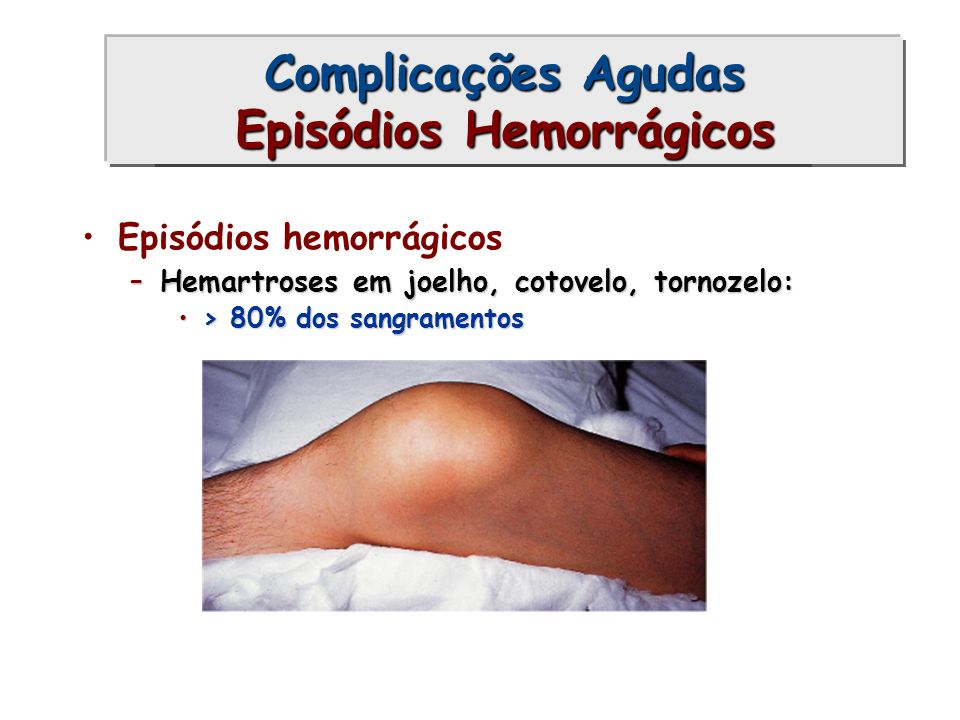 Complicações Agudas (1)