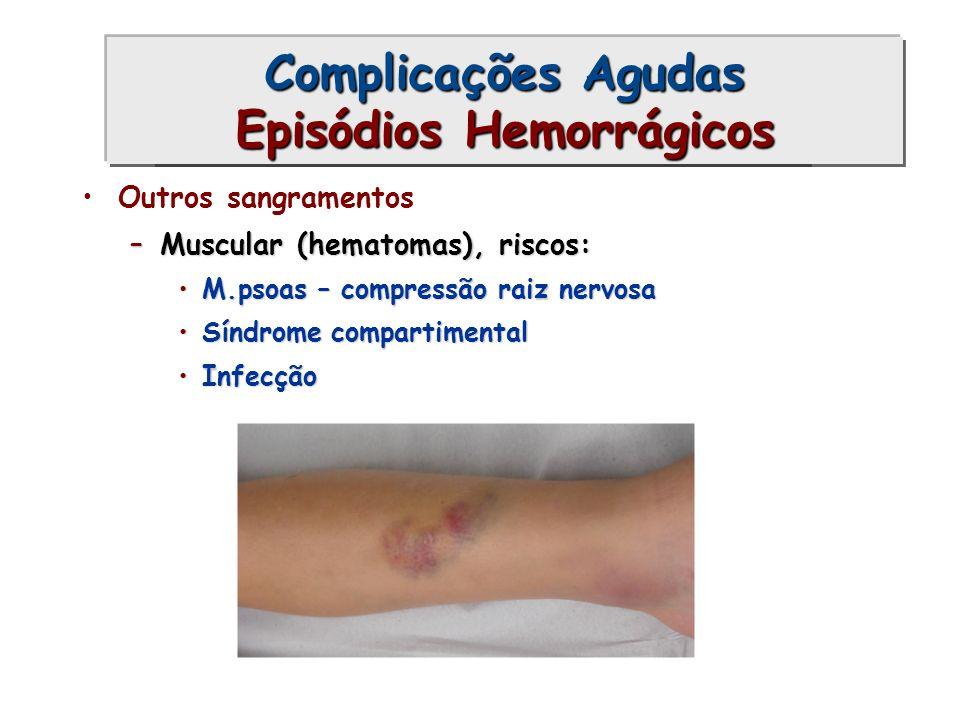 Complicações Agudas (2)