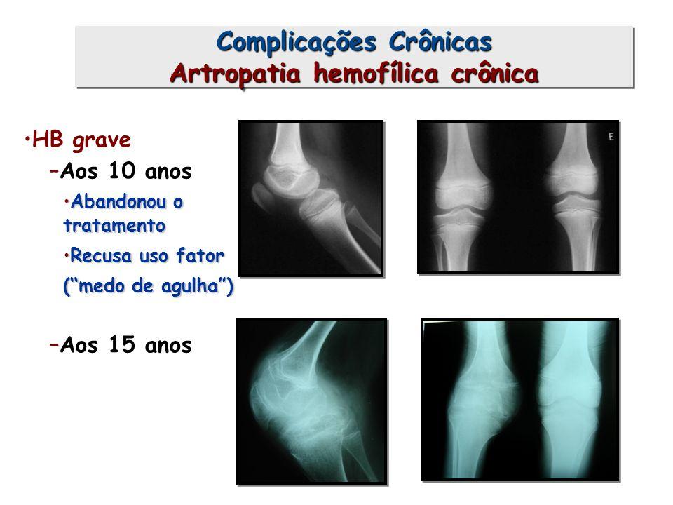 Complicações Crônicas Artropatia hemofílica crônica