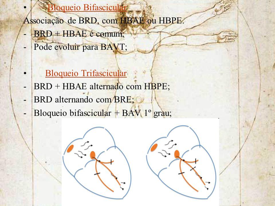 Bloqueio Bifascicular