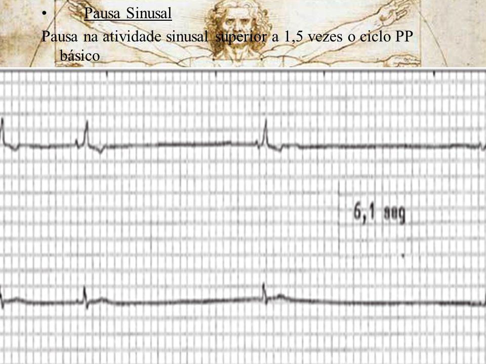 Pausa Sinusal Pausa na atividade sinusal superior a 1,5 vezes o ciclo PP básico