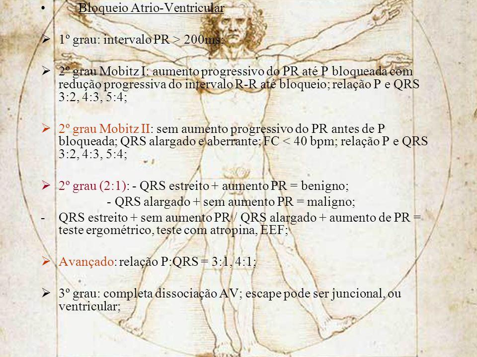 Bloqueio Atrio-Ventricular
