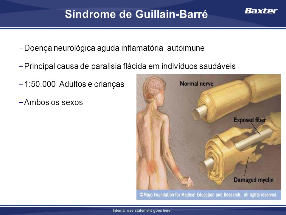 Síndrome de Guillain-Barré
